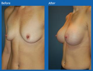 breast-augmentation-10