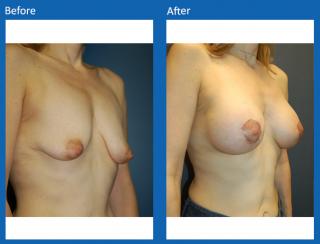 breast-augmentation-11