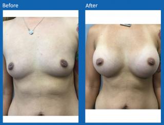 breast-augmentation-14