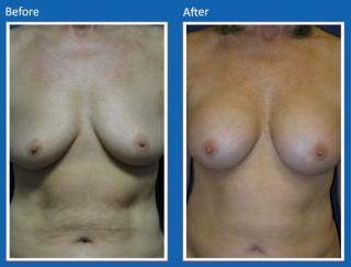breast-augmentation-15