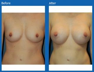 breast-augmentation-16