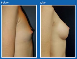 breast-augmentation-17