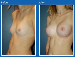 breast-augmentation-18