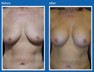 breast-augmentation-19