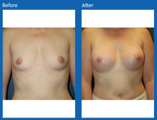 breast-augmentation-21