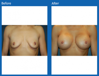 breast-augmentation-22