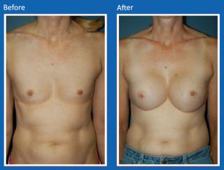 breast-augmentation-24