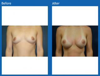 breast-augmentation-25