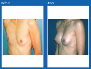 breast-augmentation-26