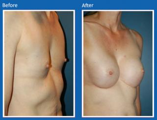 breast-augmentation-27