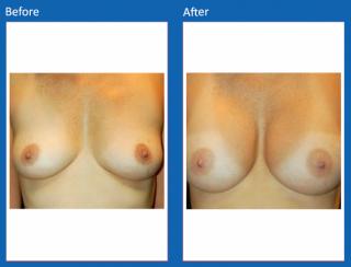 breast-augmentation-29