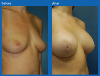 breast-augmentation-30