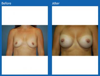breast-augmentation-31