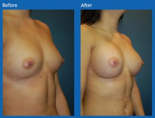 breast-augmentation-32