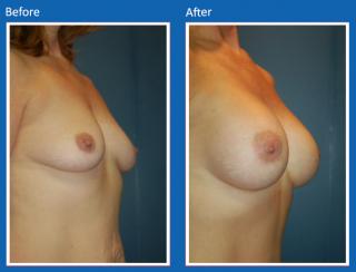 breast-augmentation-34