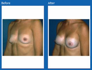 breast-augmentation-37