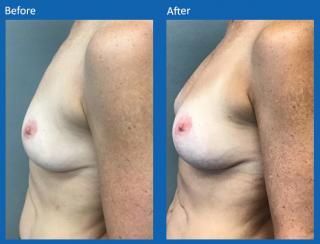 breast-augmentation-4