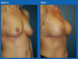 breast-augmentation-42