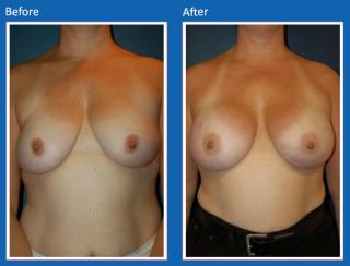 breast-augmentation-43