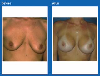 breast-augmentation-45
