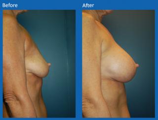 breast-augmentation-46