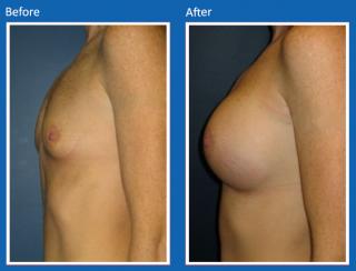 breast-augmentation-49