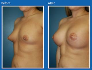 breast-augmentation-54
