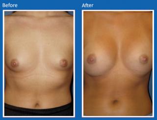 breast-augmentation-55
