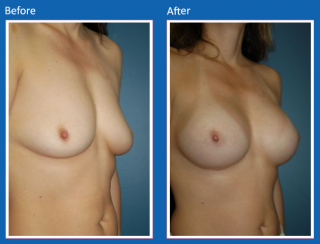breast-augmentation-56