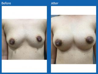 breast-augmentation-57