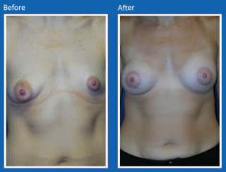 breast-augmentation-58