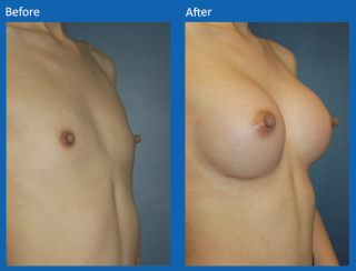 breast-augmentation-59