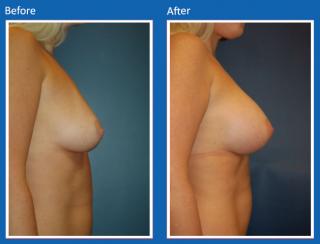 breast-augmentation-60