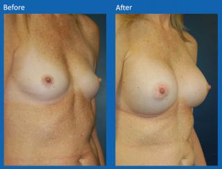 breast-augmentation-61
