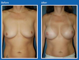 breast-augmentation-62