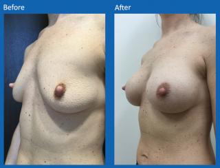 breast-augmentation-63