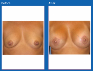 breast-augmentation-64