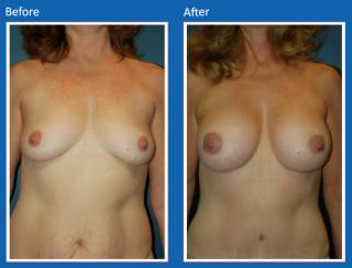 breast-augmentation-65