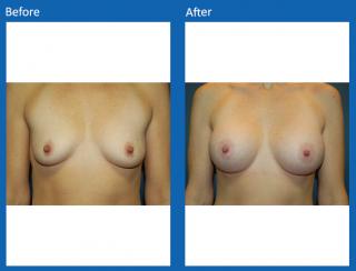 breast-augmentation-66