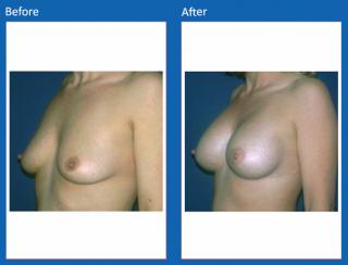 breast-augmentation-67