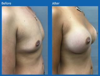 breast-augmentation-68