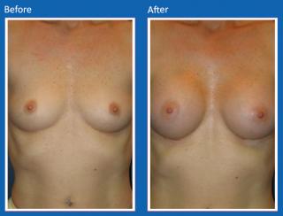breast-augmentation-69