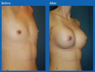 breast-augmentation-70