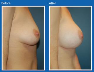 breast-augmentation-71