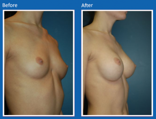 breast-augmentation-72