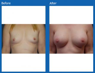 breast-augmentation-73