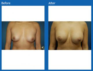 breast-augmentation-74