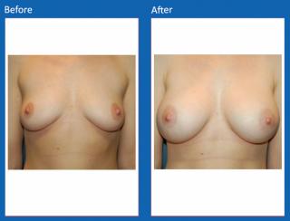 breast-augmentation-75
