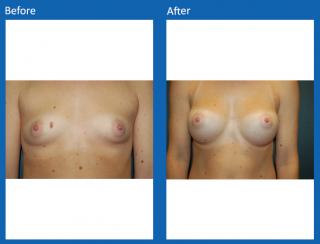 breast-augmentation-76