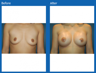 breast-augmentation-77